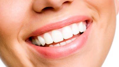 Trouver une bonne mutuelle dentaire